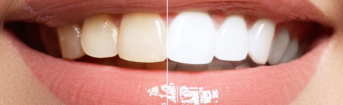 картинка эффект от капы для отбеливания зубов
